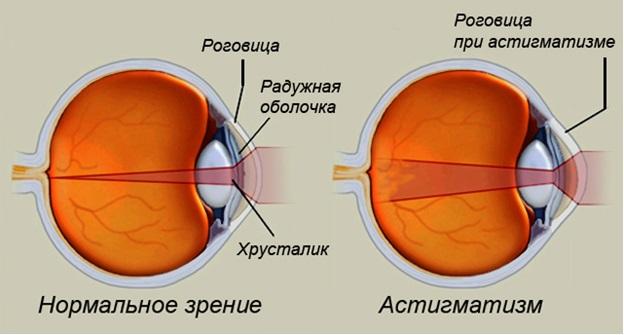 При близорукости выпуклый глаз