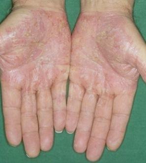 Виды псориаза и их лечение ( фото)