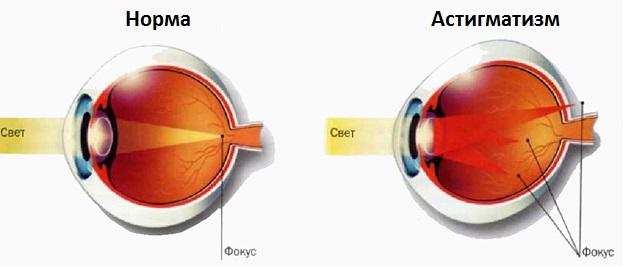 Астигматизм после операции катаракты