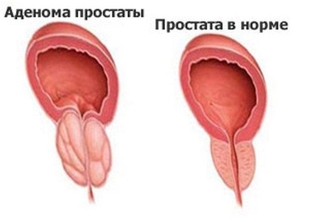 сидячий образ жизни сексуальная активность