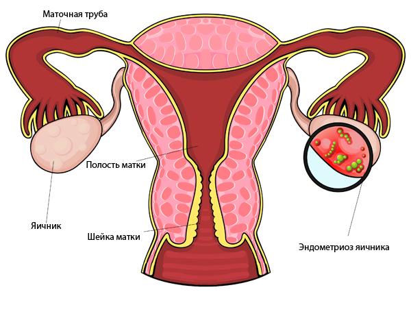 диеногест и эндометриоз