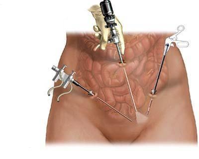 Что такое эндометриоз и как он лечится