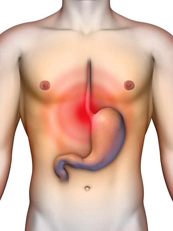 Рефлюкс-эзофагит: симптомы и лечение, диета при эрозивном рефлюкс-эзофагите