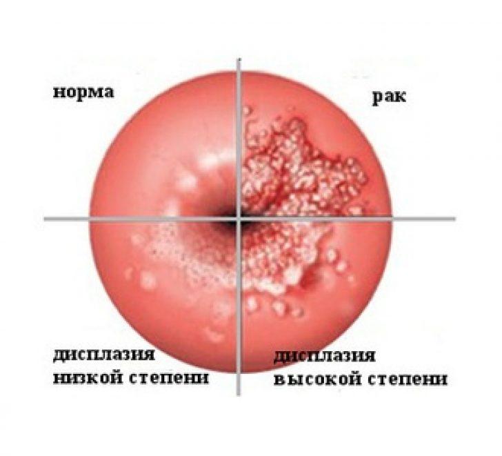 Беременность и папилломавирус
