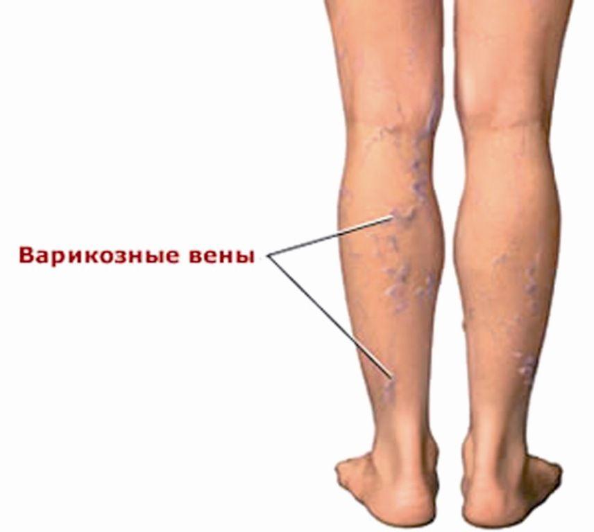 Варикозного поражения вен нижних конечностей различных суставных заболеваний профилактиче когда появляются ядра окостенения тазобедренных суставов