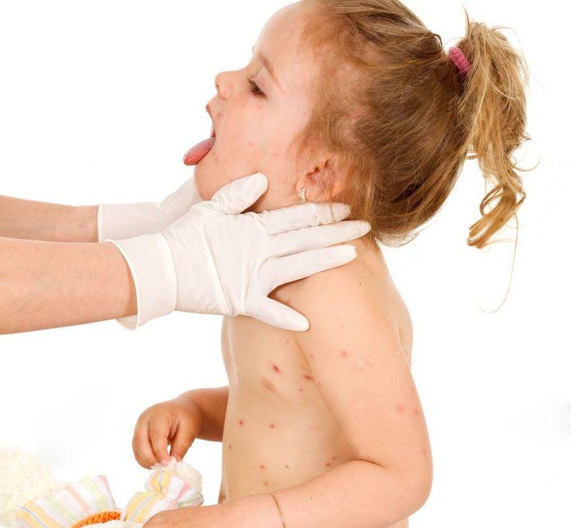 Пятно на коже фото у детей лечение