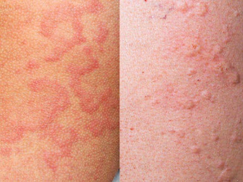 Крапивница: фото, симптомы и лечение крапивницы у взрослых
