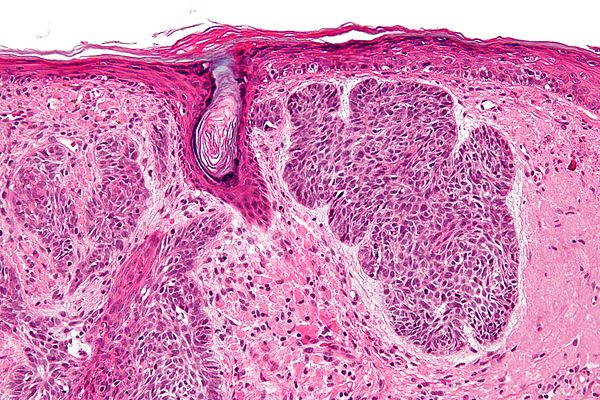Что такое базалиома кожи лица и как ее лечить фото