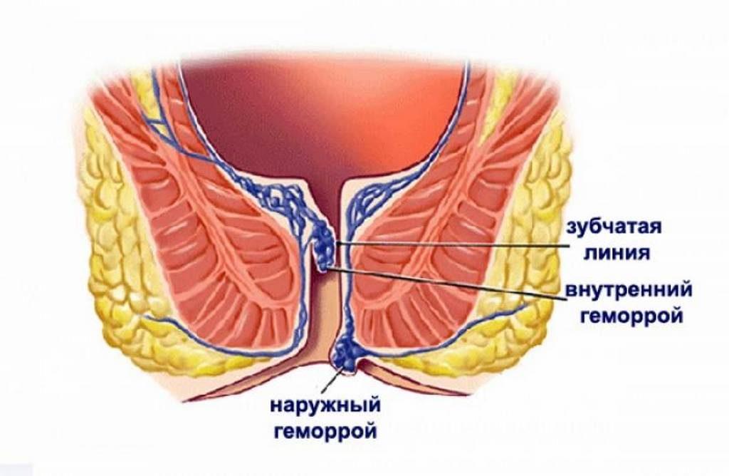 Геморрой виды причины признаки симптомы лечение