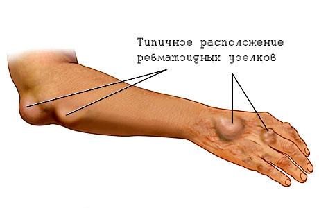 Лекарства от ревматизма суставов аппарат для суставной головки