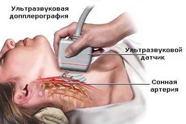 Очищение мозга и чистка сосудов головного мозга