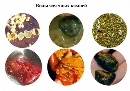 Как лечить камни в желчном народными средствами
