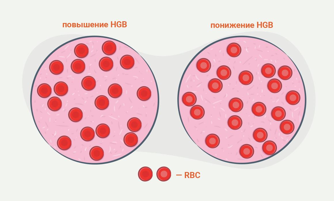 повышен холестерин у беременной причины и последствия