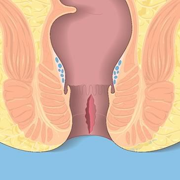 Наружный тромбозный геморрой лечение