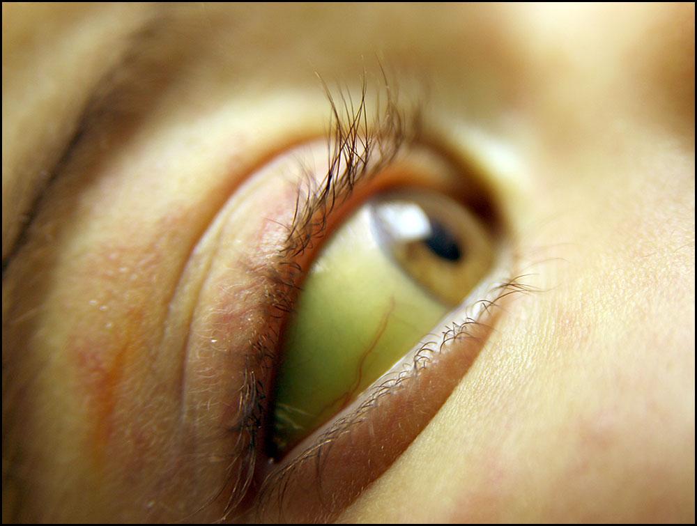 Желтый белок в глазах и желтая кожа