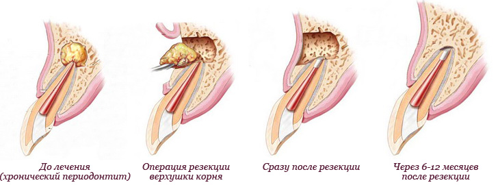 Сколько держится отек после резекции корня зуба