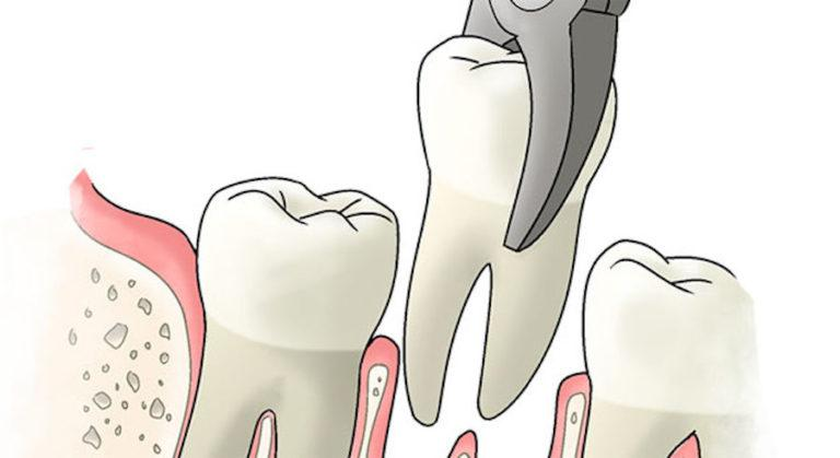 Как и чем лечить альвеолит после удаления зуба