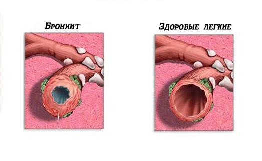 Острый простой бронхит развивается при инфекции