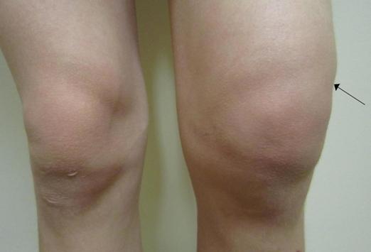 Причины возникновения болей в колене