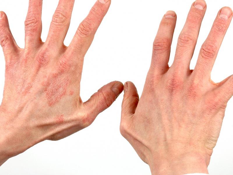 лечение экземы на руках во время беременности