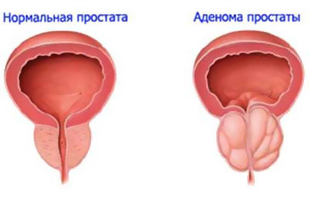Грязные выделения у женщин лечение