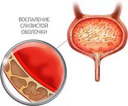 Что значит кровь в моче у женщин