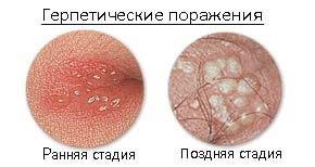 герпес половой фото у женщин