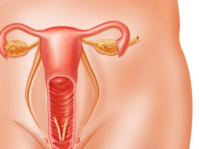 Симптомы и эффективное лечение уретрита у женщин