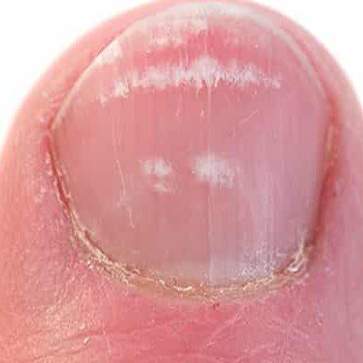 Грибок ногтей на руках на начальной стадии
