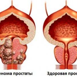 Осиновая кора применение от простатита