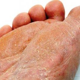 Народные средства от грибка на ногтях ноги
