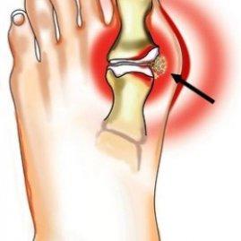 Болят косточки на ногах возле большого пальца профилактика и последствия