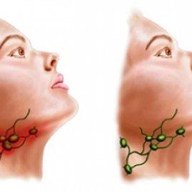 Подчелюстные лимфоузлы увеличены и болят