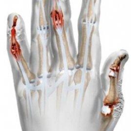 Что такое псориазный артрит