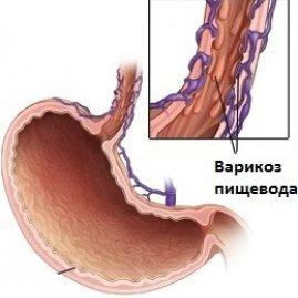 Лечение варикоза пищевода