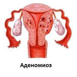Беременность и аденомиоз 1 степени