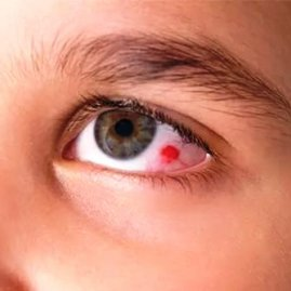 кровоизлияние в глаз фото