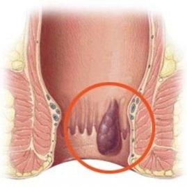 Как лечить внутренний варикоз