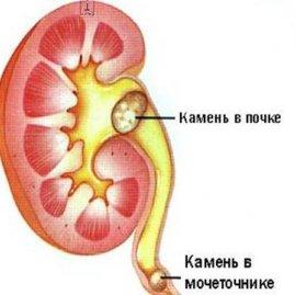 Мочекаменная болезнь у женщин – симптомы и признаки заболевания, лечение и профилактика
