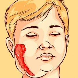 Болезнь свинка у девочек последствия