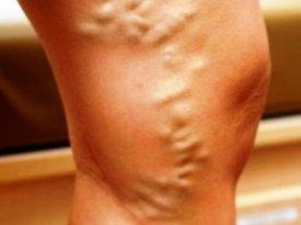 Питание при варикозе нижних конечностей важные моменты