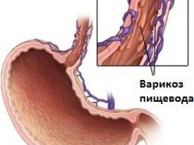 Цели диетического питания при варикозе